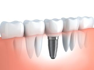 Dental Implant Restoration Belton MO